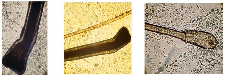 """Po lewej: prawidłowy włos anagenowy, na środku: włos anagenowy, a powyżej niego znacznie cieńszy włos dysplastyczny – cienki, bezrdzenny, po prawej: włos telogenowy z charakterystycznym """"kolbowatym"""" korzeniem."""
