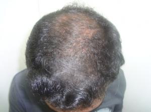 Rycina 1b: Poprawa w zakresie gęstości i grubości włosów po 4 miesiącach stosowania witamin i 2% minoksydylu.
